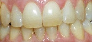 photo-of-teeth-whitening-before-treatment
