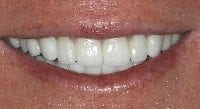 close-up of a smile design with porcelain veneers