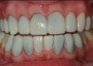 image of temporary porcelain veneers that are leaking