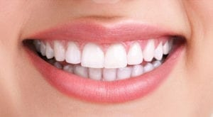 close up photo of a beautiful white smile